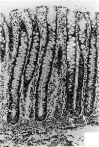 Гистопатология кишки. Особенности напоминают язвенный колит человека.