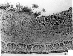 Край язвы с потерей эпителиальных клеток толстой кишки.